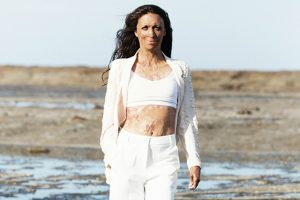 Stepping into your power with Turia Pitt